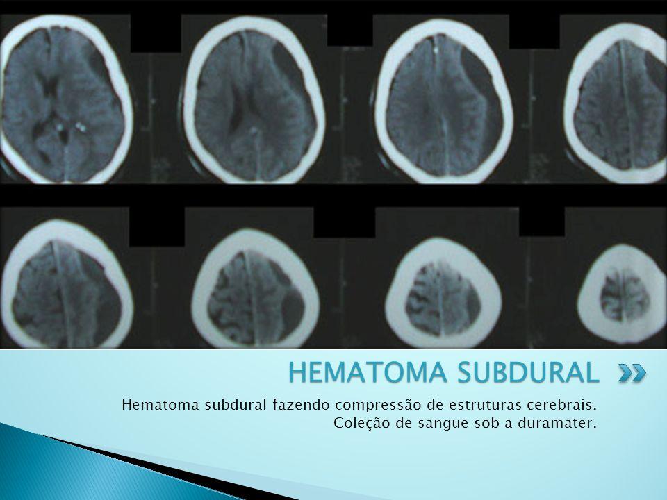 Hematoma subdural fazendo compressão de estruturas cerebrais. Coleção de sangue sob a duramater. HEMATOMA SUBDURAL