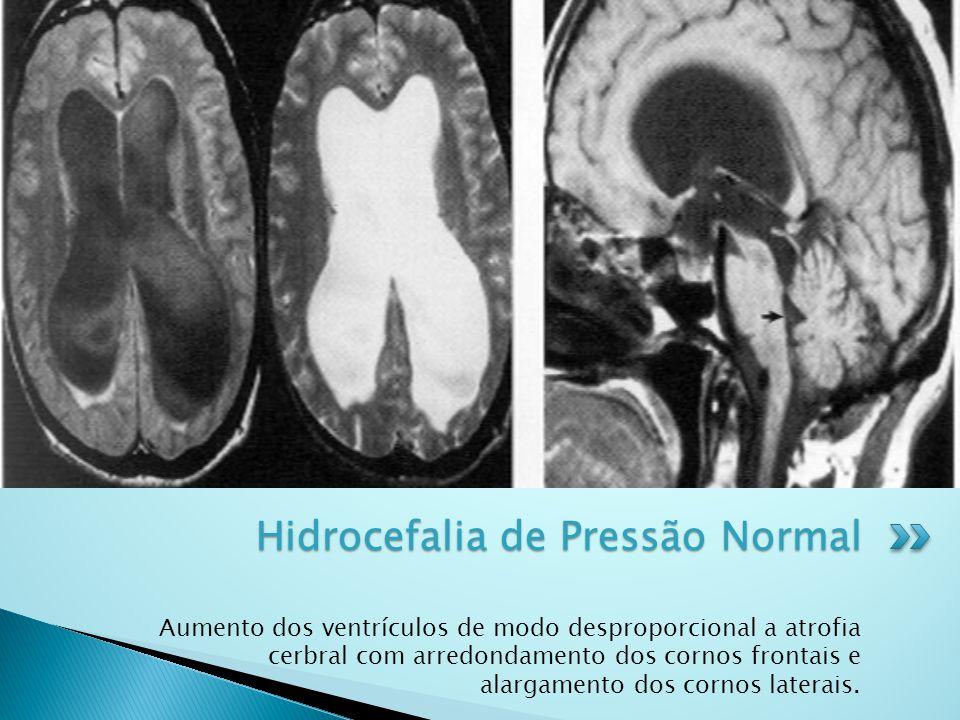Aumento dos ventrículos de modo desproporcional a atrofia cerbral com arredondamento dos cornos frontais e alargamento dos cornos laterais. Hidrocefal