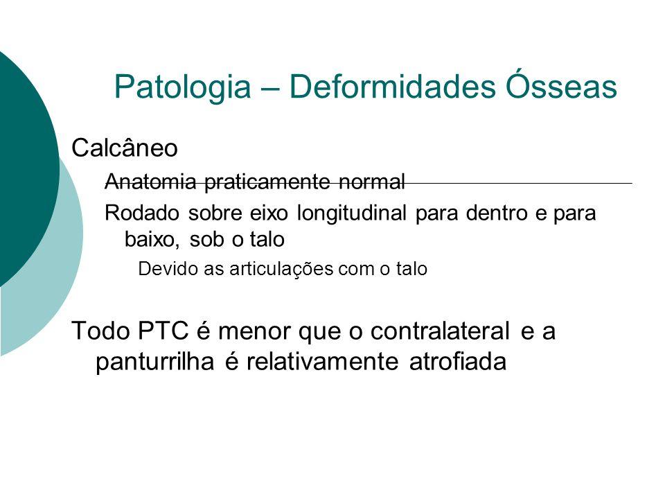 Patologia – Deformidades Ósseas Calcâneo Anatomia praticamente normal Rodado sobre eixo longitudinal para dentro e para baixo, sob o talo Devido as ar