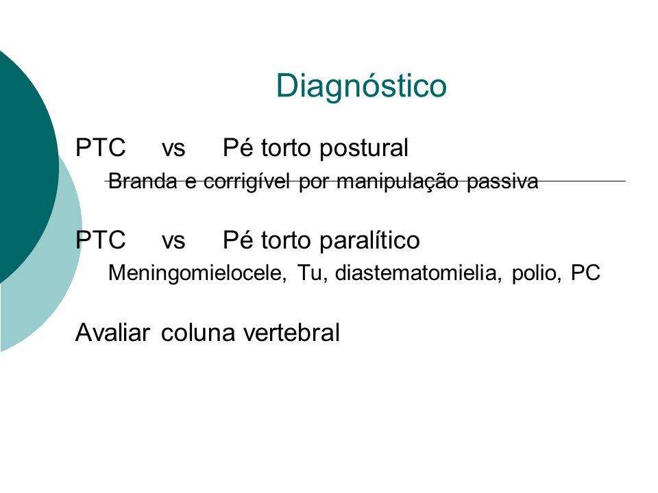 Diagnóstico PTC vs Pé torto postural Branda e corrigível por manipulação passiva PTC vs Pé torto paralítico Meningomielocele, Tu, diastematomielia, po