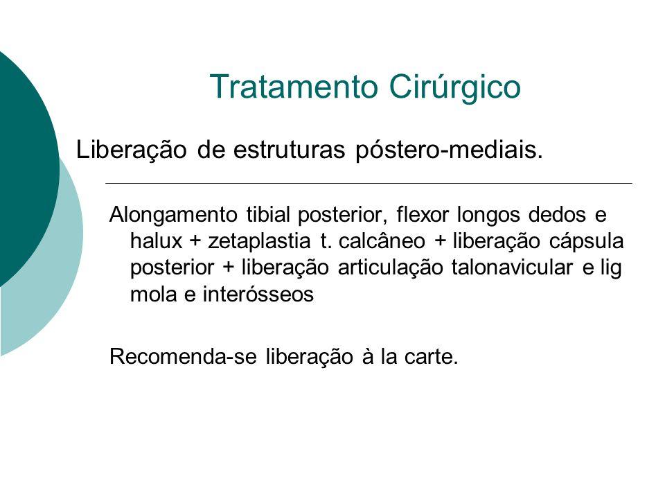 Tratamento Cirúrgico Liberação de estruturas póstero-mediais. Alongamento tibial posterior, flexor longos dedos e halux + zetaplastia t. calcâneo + li