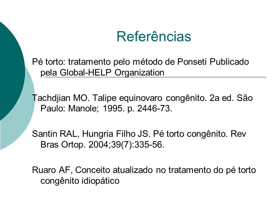 Referências Pé torto: tratamento pelo método de Ponseti Publicado pela Global-HELP Organization Tachdjian MO. Talipe equinovaro congênito. 2a ed. São