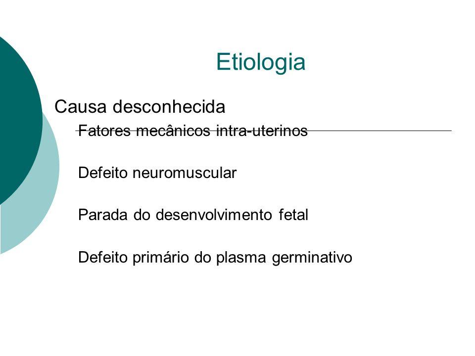 Etiologia Causa desconhecida Fatores mecânicos intra-uterinos Defeito neuromuscular Parada do desenvolvimento fetal Defeito primário do plasma germina