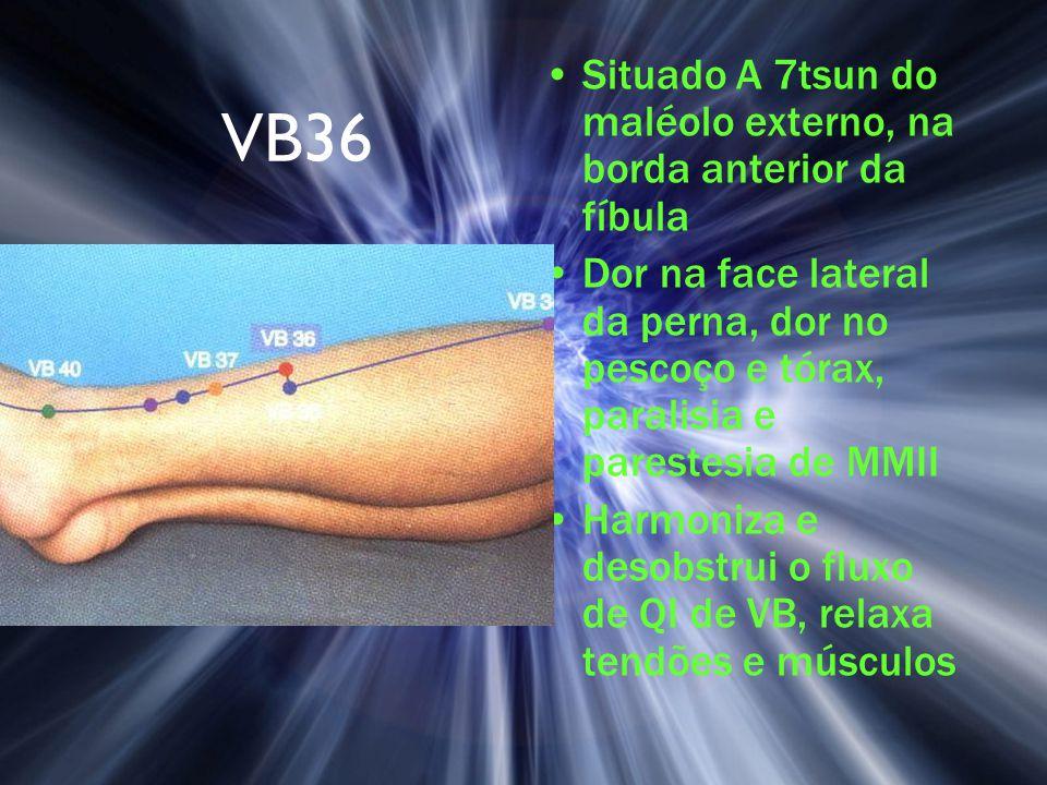 VB36 Situado A 7tsun do maléolo externo, na borda anterior da fíbula Dor na face lateral da perna, dor no pescoço e tórax, paralisia e parestesia de M