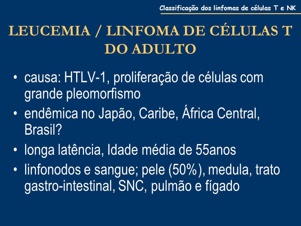 Classificação dos linfomas de células T e NK LEUCEMIA / LINFOMA DE CÉLULAS T DO ADULTO causa: HTLV-1, proliferação de células com grande pleomorfismo endêmica no Japão, Caribe, África Central, Brasil.