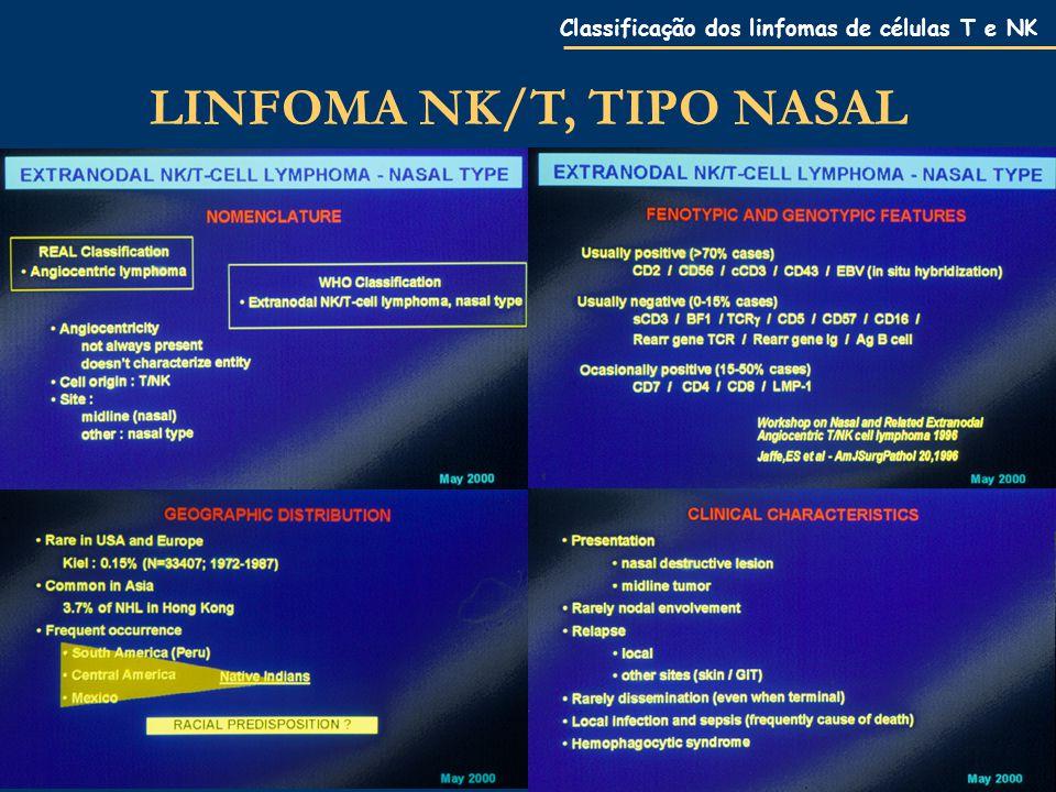 Classificação dos linfomas de células T e NK LINFOMA NK/T, TIPO NASAL