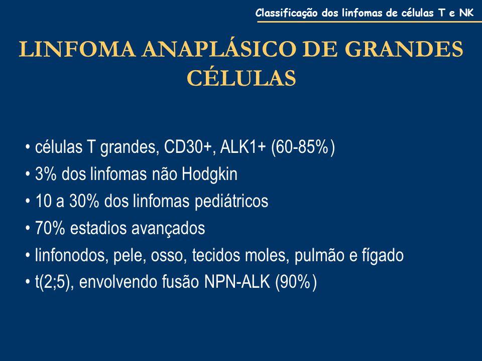 Classificação dos linfomas de células T e NK LINFOMA ANAPLÁSICO DE GRANDES CÉLULAS células T grandes, CD30+, ALK1+ (60-85%) 3% dos linfomas não Hodgkin 10 a 30% dos linfomas pediátricos 70% estadios avançados linfonodos, pele, osso, tecidos moles, pulmão e fígado t(2;5), envolvendo fusão NPN-ALK (90%)