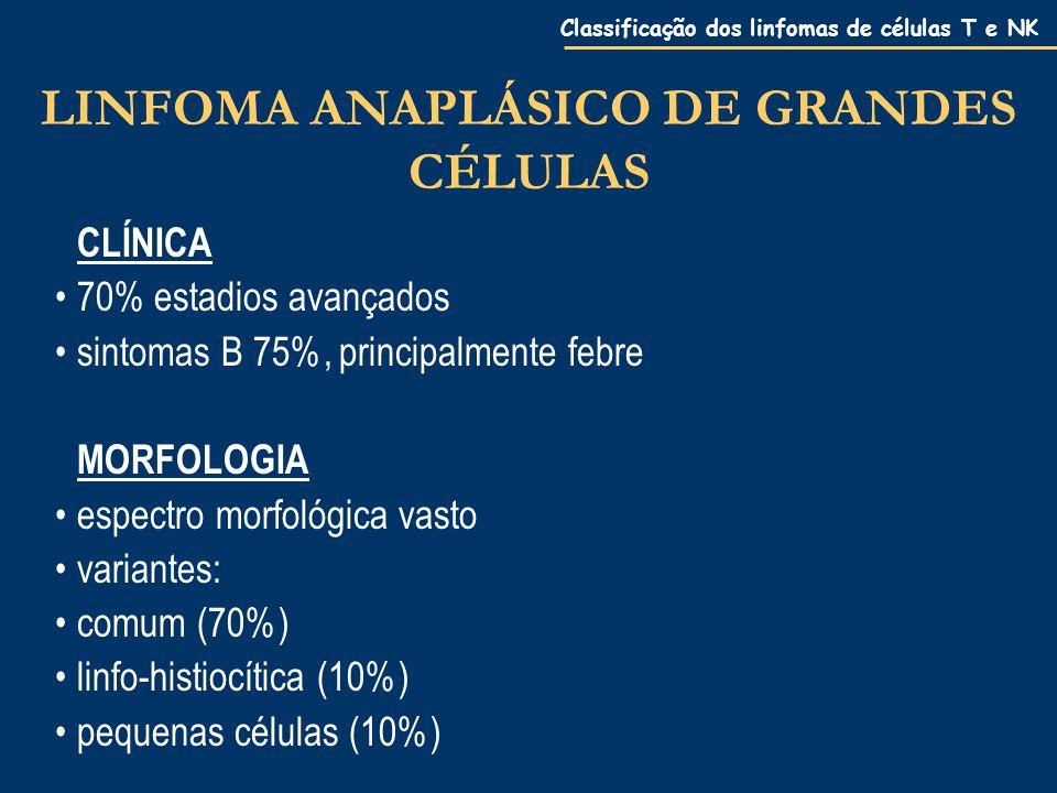 Classificação dos linfomas de células T e NK LINFOMA ANAPLÁSICO DE GRANDES CÉLULAS CLÍNICA 70% estadios avançados sintomas B 75%, principalmente febre MORFOLOGIA espectro morfológica vasto variantes: comum (70%) linfo-histiocítica (10%) pequenas células (10%)