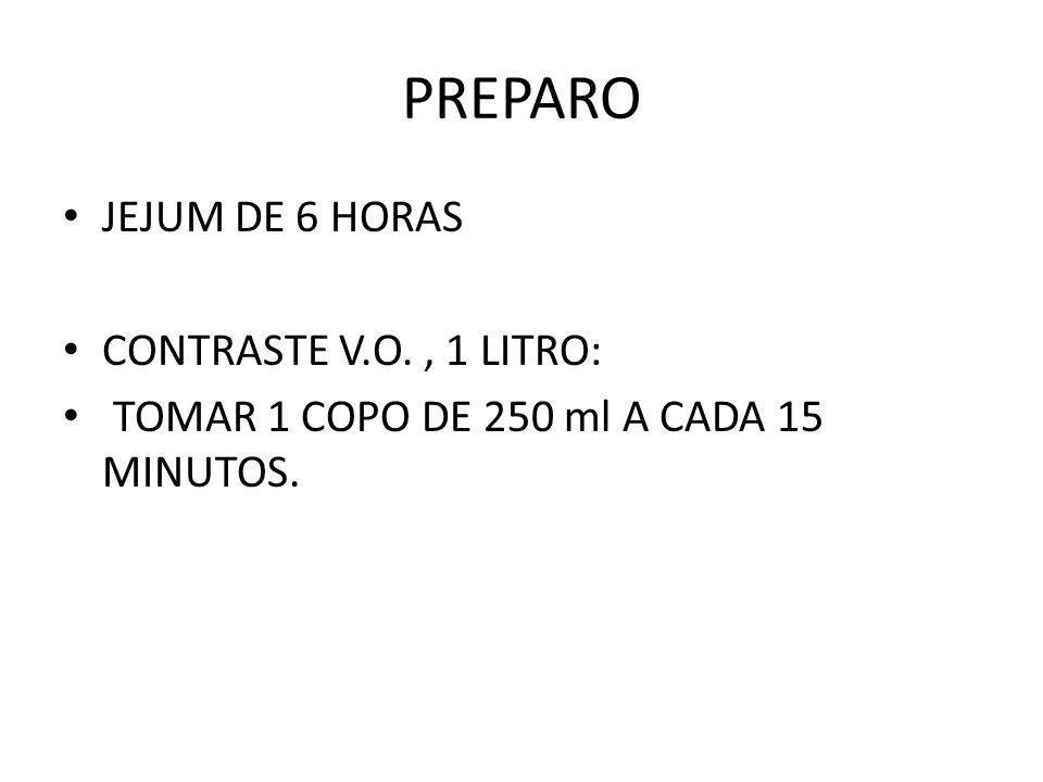 PREPARO JEJUM DE 6 HORAS CONTRASTE V.O., 1 LITRO: TOMAR 1 COPO DE 250 ml A CADA 15 MINUTOS.