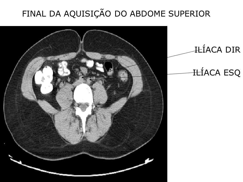 FINAL DA AQUISIÇÃO DO ABDOME SUPERIOR ILÍACA DIR ILÍACA ESQ
