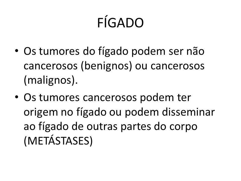 FÍGADO Os tumores do fígado podem ser não cancerosos (benignos) ou cancerosos (malignos). Os tumores cancerosos podem ter origem no fígado ou podem di