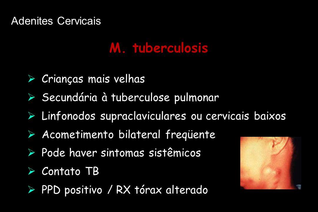 M. tuberculosis M. tuberculosis  Crianças mais velhas  Secundária à tuberculose pulmonar  Linfonodos supraclaviculares ou cervicais baixos  Acomet
