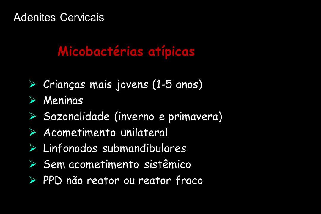  Crianças mais jovens (1-5 anos)  Meninas  Sazonalidade (inverno e primavera)  Acometimento unilateral  Linfonodos submandibulares  Sem acometim