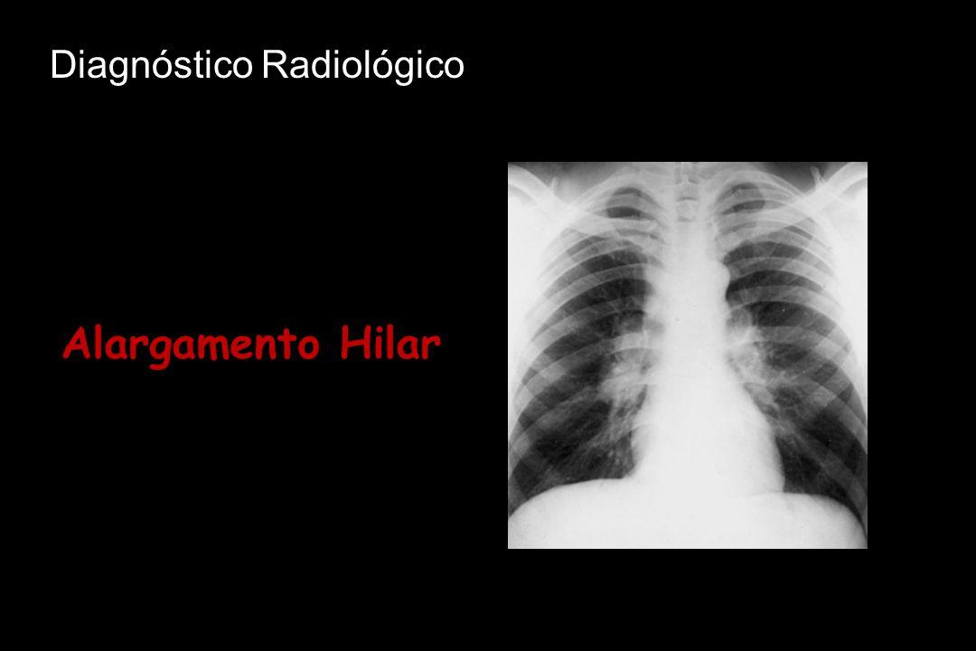 Diagnóstico Radiológico Alargamento Hilar