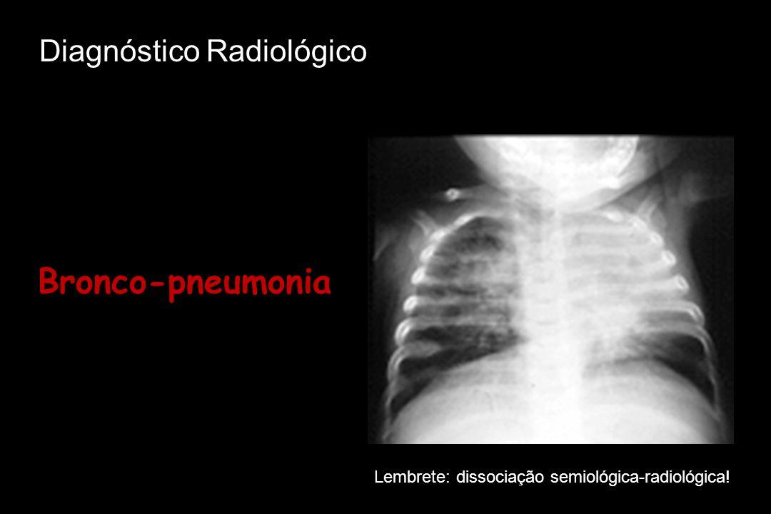 Bronco-pneumonia Lembrete: dissociação semiológica-radiológica! Diagnóstico Radiológico
