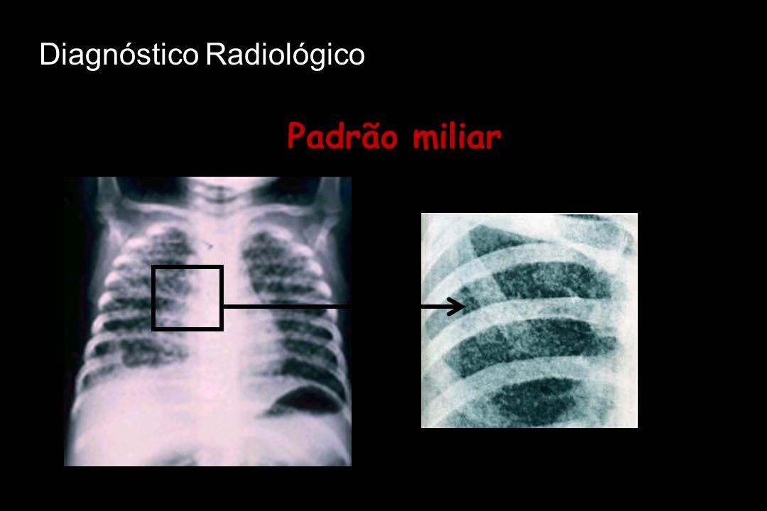 Padrão miliar Diagnóstico Radiológico