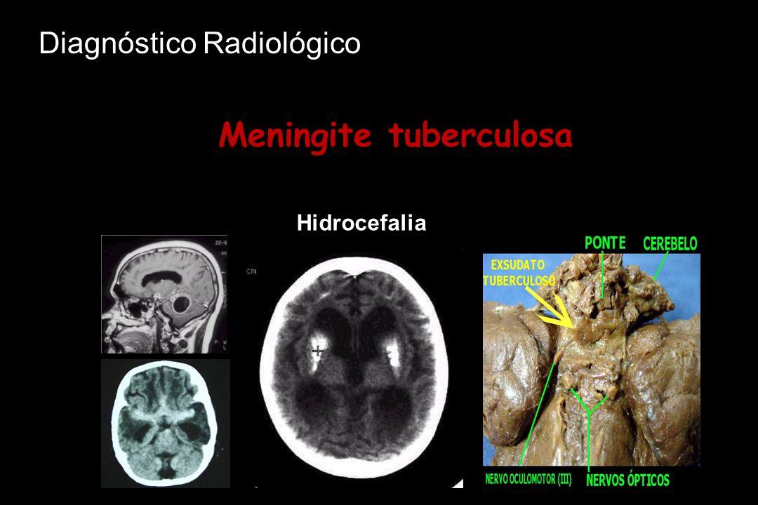 Meningite tuberculosa Hidrocefalia Diagnóstico Radiológico