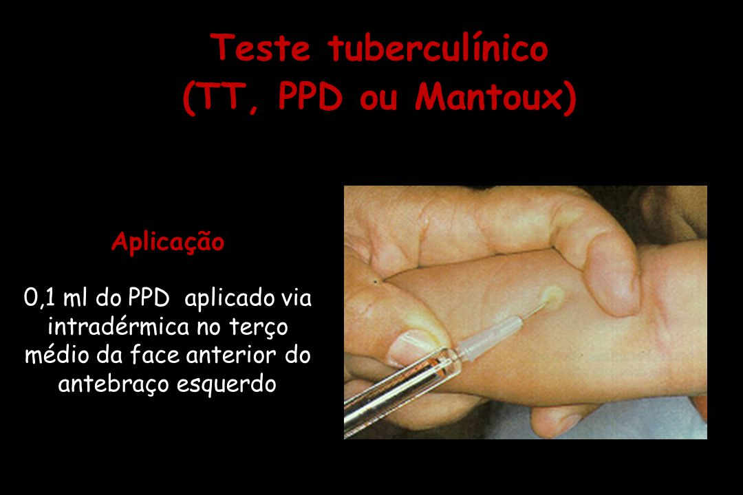 Aplicação 0,1 ml do PPD aplicado via intradérmica no terço médio da face anterior do antebraço esquerdo Aplicação 0,1 ml do PPD aplicado via intradérm