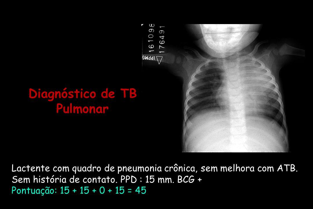 Lactente com quadro de pneumonia crônica, sem melhora com ATB. Sem história de contato. PPD : 15 mm. BCG + Pontuação: 15 + 15 + 0 + 15 = 45 Diagnóstic