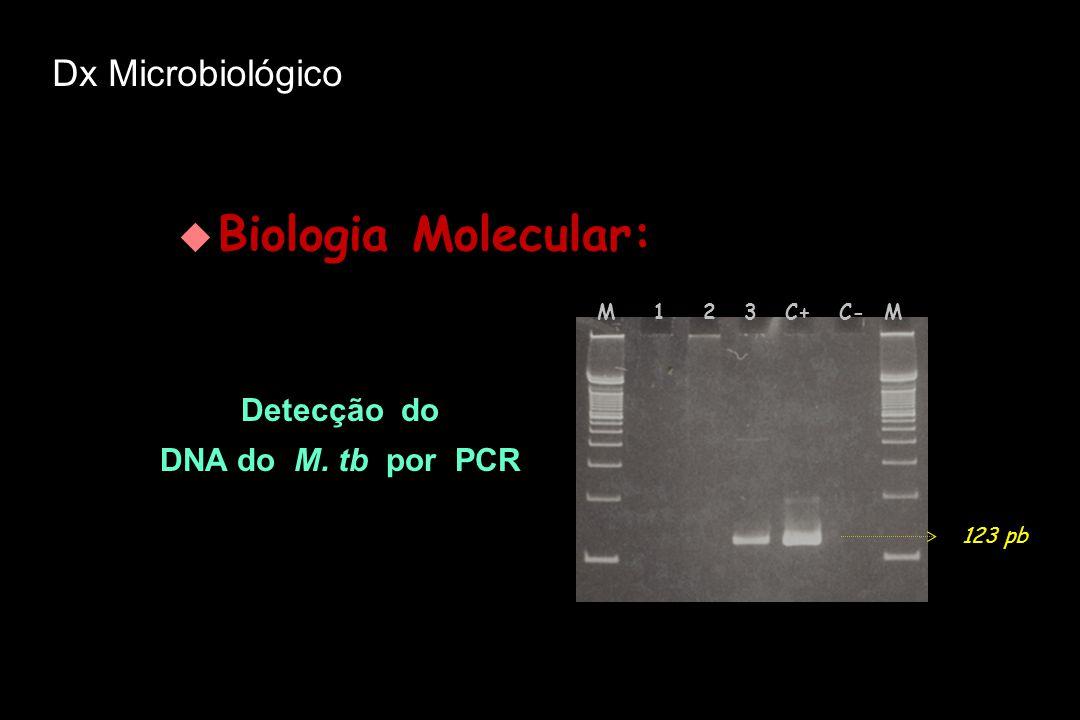  Biologia Molecular: Detecção do DNA do M. tb por PCR Detecção do DNA do M. tb por PCR M 1 2 3 C+ C- M 123 pb Dx Microbiológico