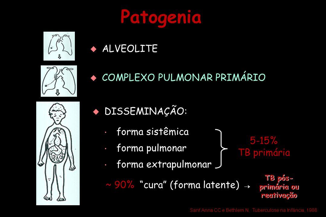 Patogenia   ALVEOLITE   COMPLEXO PULMONAR PRIMÁRIO   DISSEMINAÇÃO: forma sistêmica forma pulmonar forma extrapulmonar forma sistêmica forma pulm
