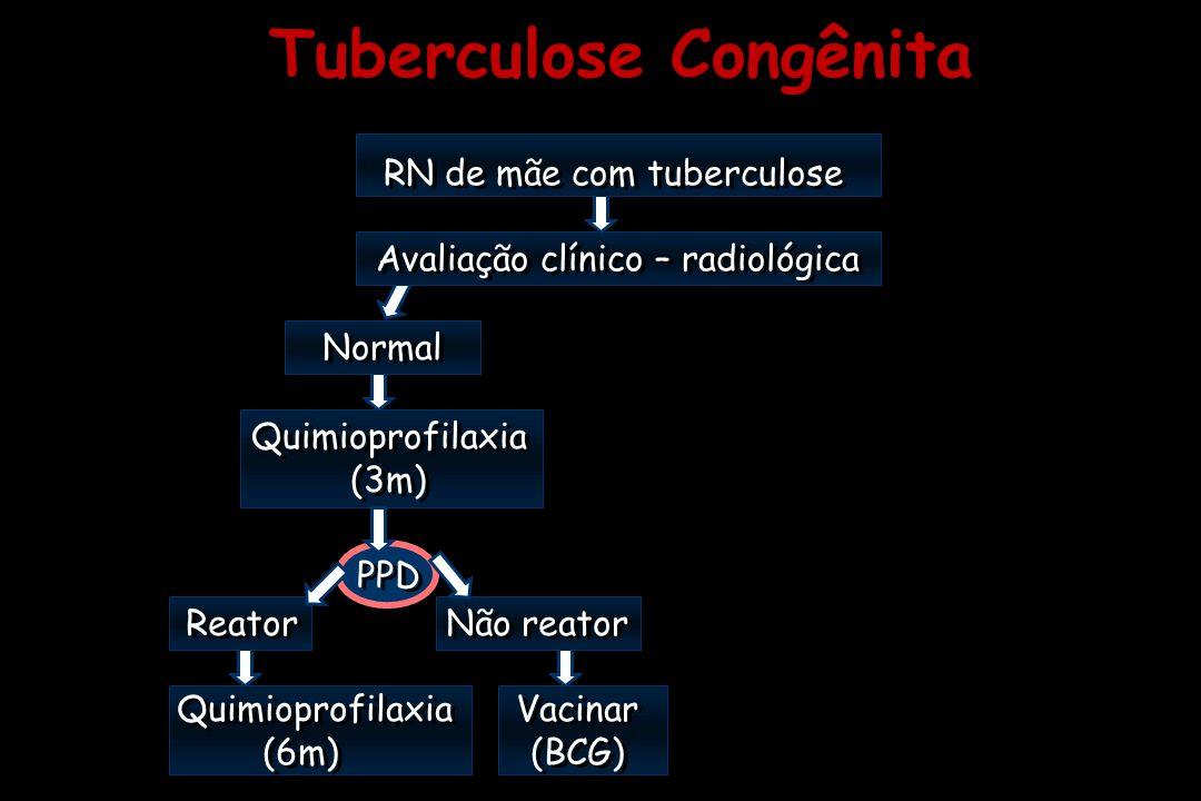 Tuberculose Congênita RN de mãe com tuberculose Avaliação clínico – radiológica RN de mãe com tuberculose Avaliação clínico – radiológica Quimioprofil