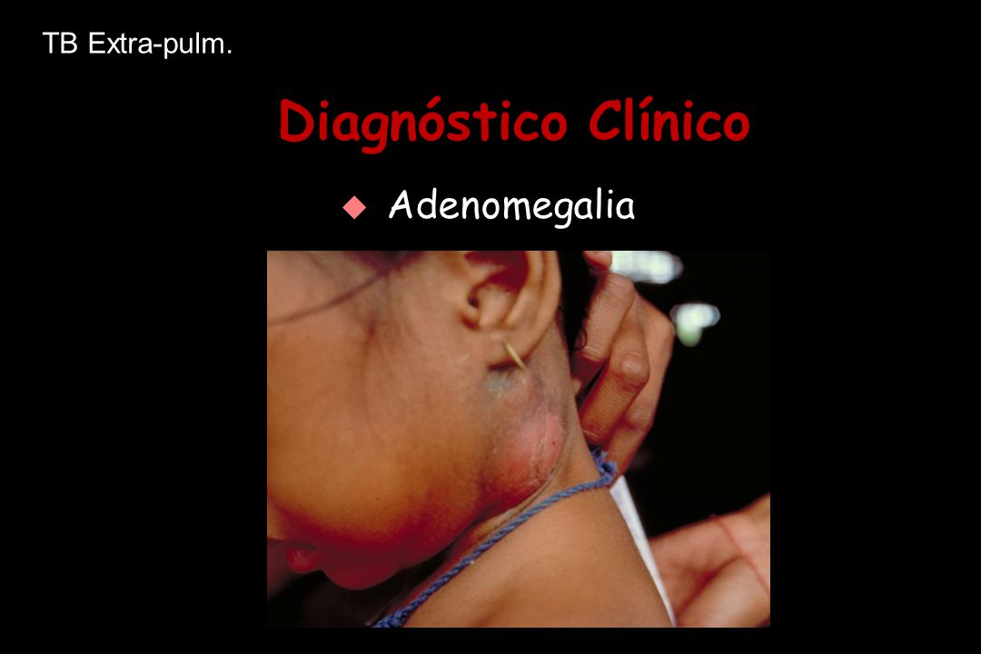 Diagnóstico Clínico   Adenomegalia TB Extra-pulm.