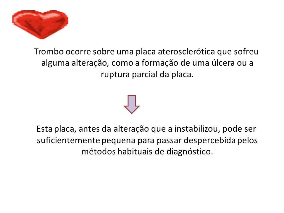 Trombo ocorre sobre uma placa aterosclerótica que sofreu alguma alteração, como a formação de uma úlcera ou a ruptura parcial da placa. Esta placa, an