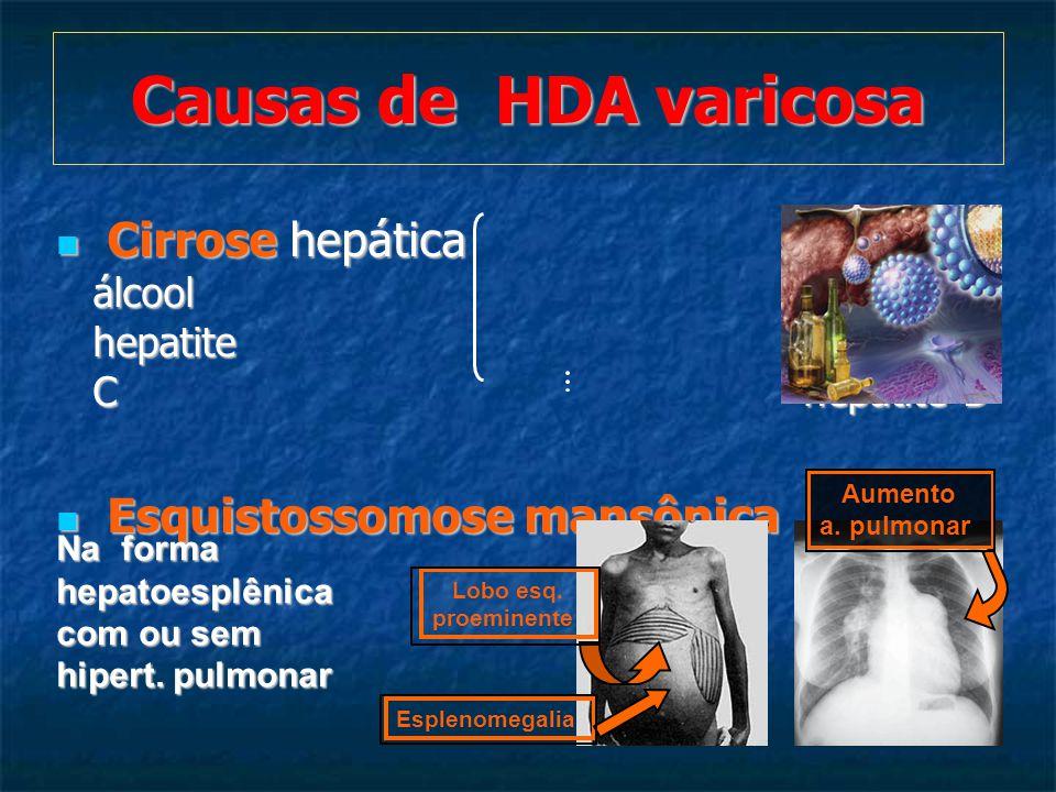 Cirrose hepática álcool hepatite C hepatite B Cirrose hepática álcool hepatite C hepatite B Esquistossomose mansônica Esquistossomose mansônica Causas de HDA varicosa Esplenomegalia Lobo esq.