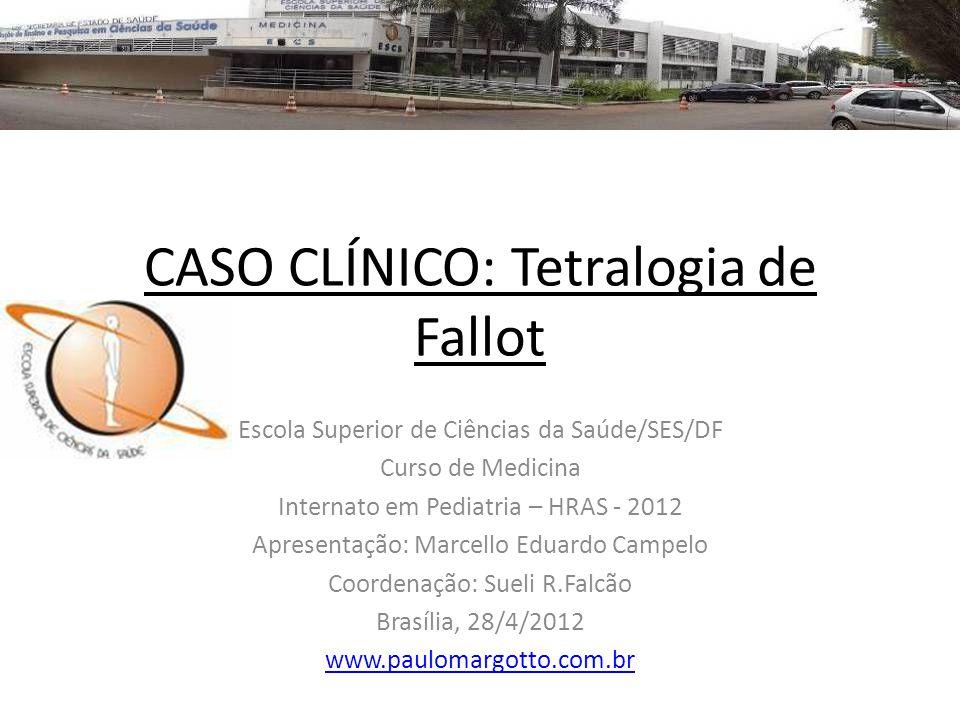 Tetralogia de Fallot (1) Ocorre retorno venoso normal para o átrio direito (AD) e VD.