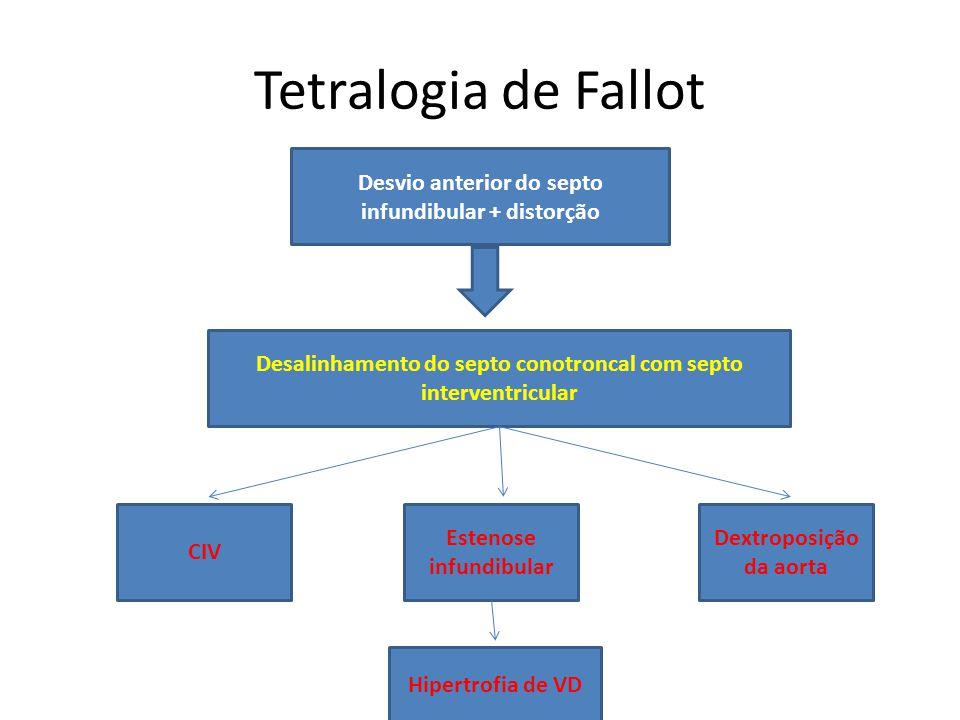 Tetralogia de Fallot Desvio anterior do septo infundibular + distorção Desalinhamento do septo conotroncal com septo interventricular CIV Estenose inf