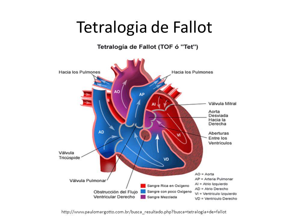 Tetralogia de Fallot http://www.paulomargotto.com.br/busca_resultado.php?busca=tetralogia+de+fallot