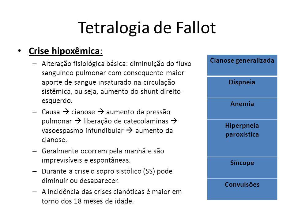 Tetralogia de Fallot Crise hipoxêmica: – Alteração fisiológica básica: diminuição do fluxo sanguíneo pulmonar com consequente maior aporte de sangue i