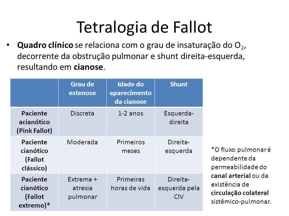 Tetralogia de Fallot Quadro clínico se relaciona com o grau de insaturação do O 2, decorrente da obstrução pulmonar e shunt direita-esquerda, resultan