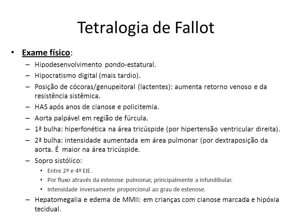 Tetralogia de Fallot Exame físico: – Hipodesenvolvimento pondo-estatural. – Hipocratismo digital (mais tardio). – Posição de cócoras/genupeitoral (lac