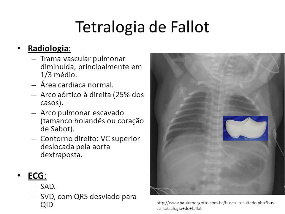 Tetralogia de Fallot Radiologia: – Trama vascular pulmonar diminuída, principalmente em 1/3 médio. – Área cardíaca normal. – Arco aórtico à direita (2