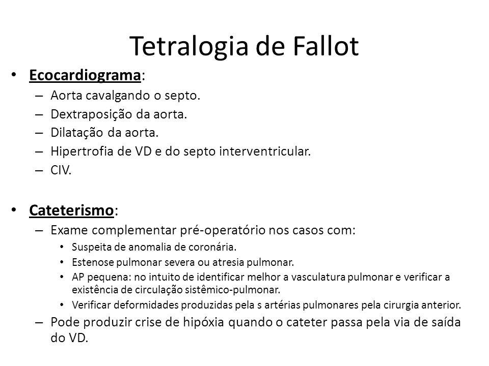 Tetralogia de Fallot Ecocardiograma: – Aorta cavalgando o septo. – Dextraposição da aorta. – Dilatação da aorta. – Hipertrofia de VD e do septo interv