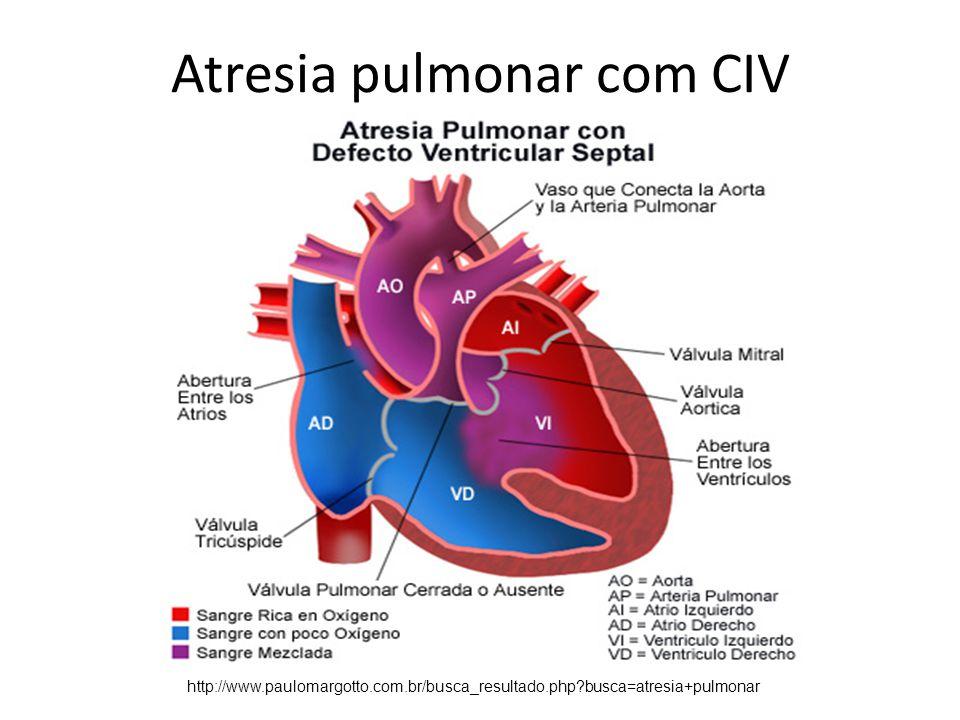 Atresia pulmonar com CIV http://www.paulomargotto.com.br/busca_resultado.php?busca=atresia+pulmonar