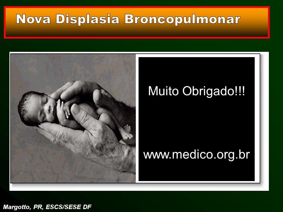 Margotto, PR, ESCS/SESE DF Muito Obrigado!!! www.medico.org.br