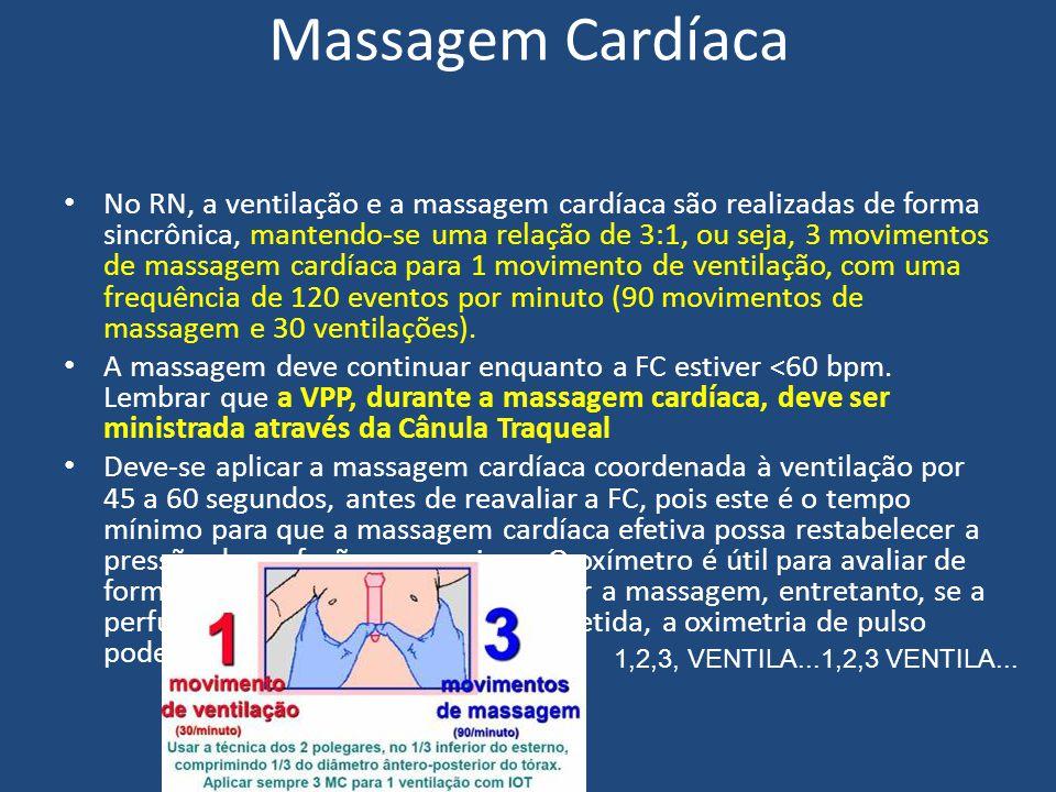 Massagem Cardíaca No RN, a ventilação e a massagem cardíaca são realizadas de forma sincrônica, mantendo-se uma relação de 3:1, ou seja, 3 movimentos