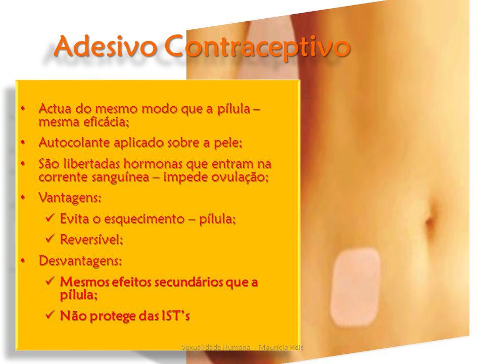 Adesivo Contraceptivo Actua do mesmo modo que a pílula – mesma eficácia; Actua do mesmo modo que a pílula – mesma eficácia; Autocolante aplicado sobre a pele; Autocolante aplicado sobre a pele; São libertadas hormonas que entram na corrente sanguínea – impede ovulação; São libertadas hormonas que entram na corrente sanguínea – impede ovulação; Vantagens: Vantagens: Evita o esquecimento – pílula; Evita o esquecimento – pílula; Reversível; Reversível; Desvantagens: Desvantagens: Mesmos efeitos secundários que a pílula; Mesmos efeitos secundários que a pílula; Não protege das IST's Não protege das IST's Actua do mesmo modo que a pílula – mesma eficácia; Actua do mesmo modo que a pílula – mesma eficácia; Autocolante aplicado sobre a pele; Autocolante aplicado sobre a pele; São libertadas hormonas que entram na corrente sanguínea – impede ovulação; São libertadas hormonas que entram na corrente sanguínea – impede ovulação; Vantagens: Vantagens: Evita o esquecimento – pílula; Evita o esquecimento – pílula; Reversível; Reversível; Desvantagens: Desvantagens: Mesmos efeitos secundários que a pílula; Mesmos efeitos secundários que a pílula; Não protege das IST's Não protege das IST's Sexualidade Humana - Maurícia Reis