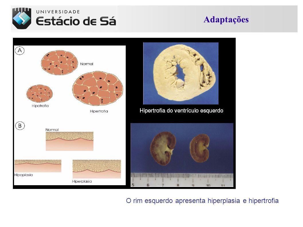 O rim esquerdo apresenta hiperplasia e hipertrofia