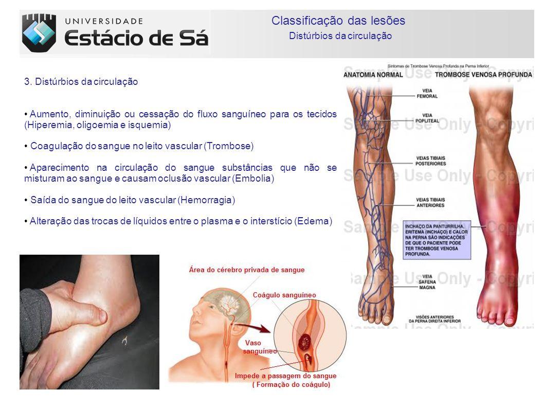 Classificação das lesões Inflamação 4.Inflamação É a lesão mais complexa que envolve todos os componentes teciduais.