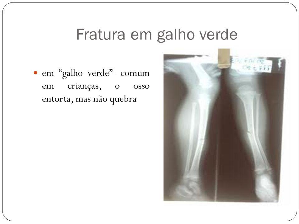 """Fratura em galho verde em """"galho verde""""- comum em crianças, o osso entorta, mas não quebra"""