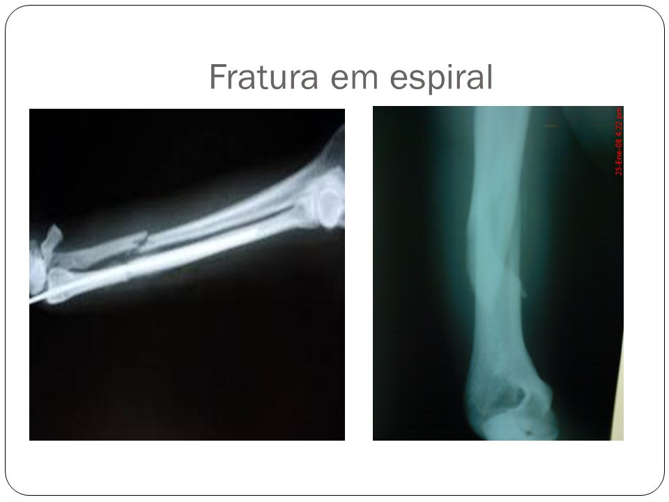 BASE EM FORMATO DE ESPIRAL\ELEMENTO ROTACIONAL
