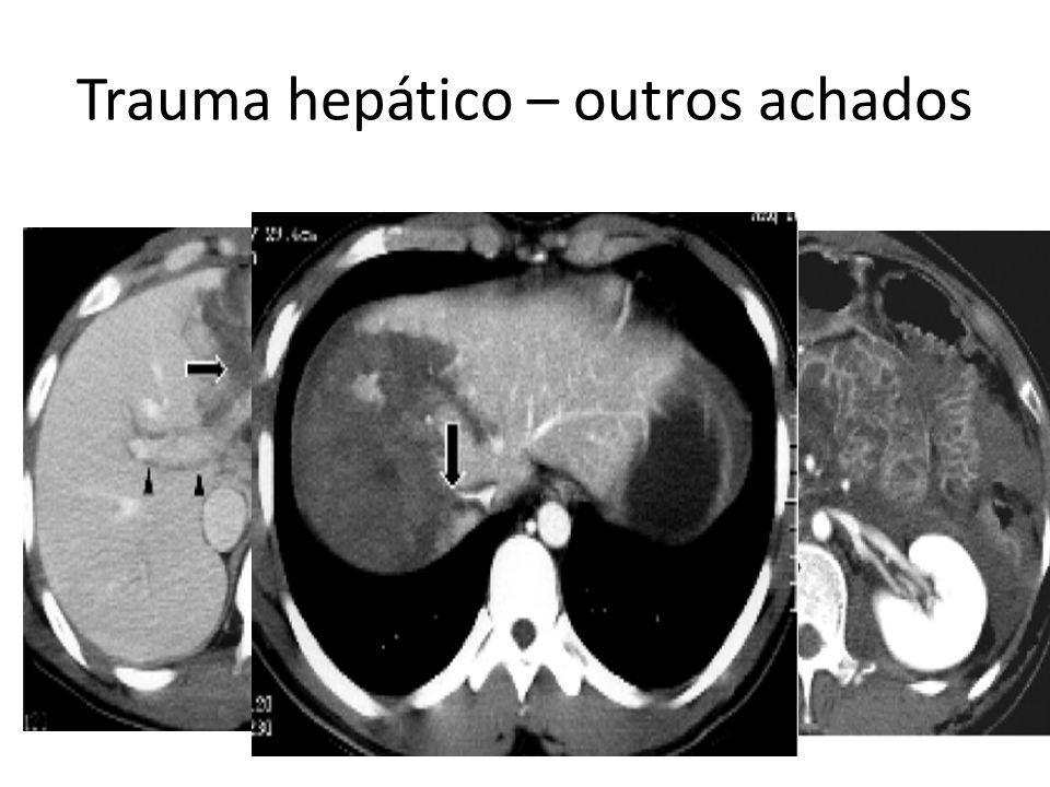 Trauma hepático – outros achados