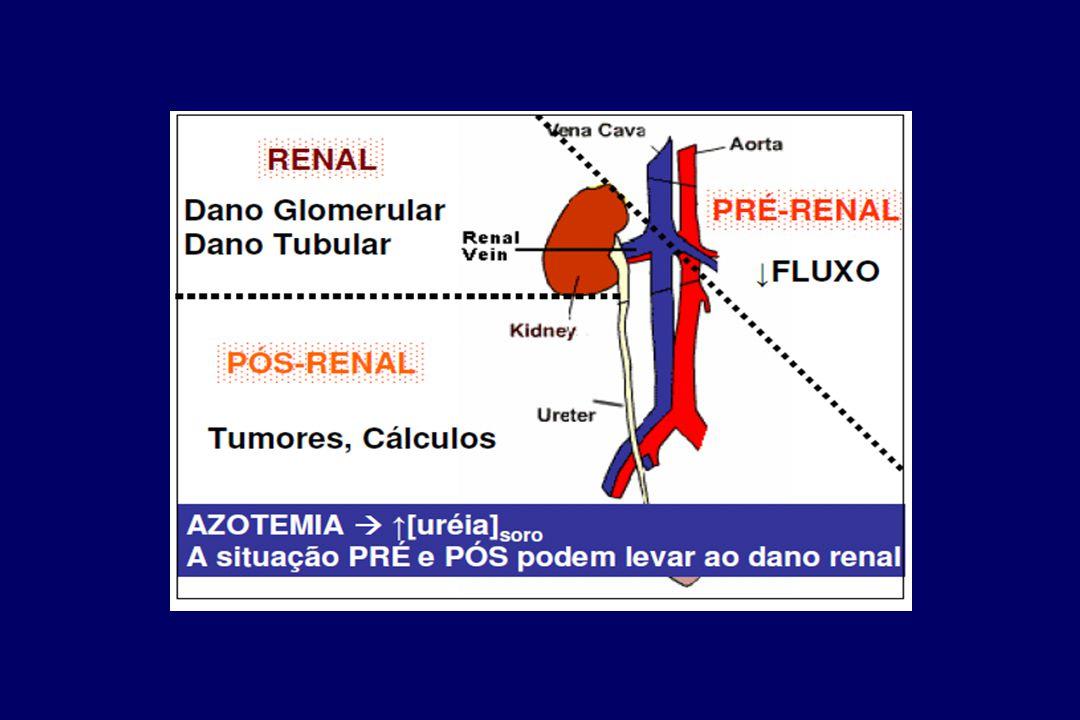 Pós - Renal Obstrução ao fluxo urinário de ambos os rins  elevação da pressão intraluminal  redução da TFG Anúria, poliúria ou volume urinário norma