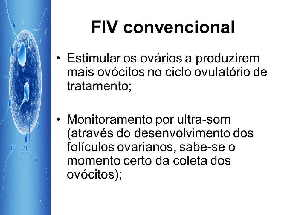 FIV convencional Retirada dos ovócitos (aspiração transvaginal por ultrapor ; Coleta do sêmen e seleção de espermatozóides; Espermatozóides colocados junto aos ovócitos.