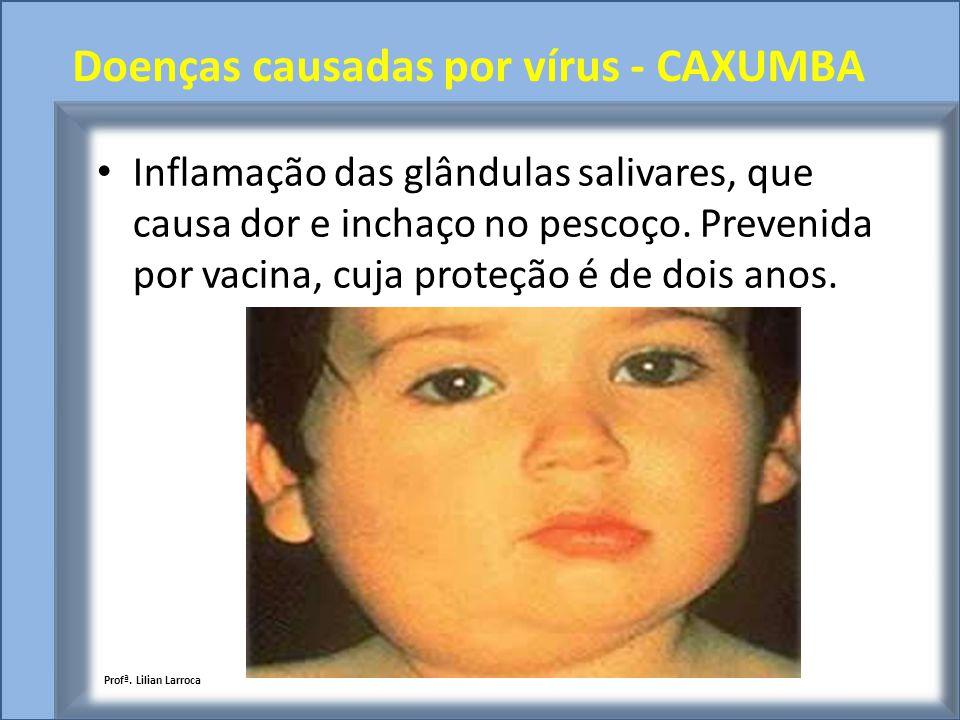 Doenças causadas por vírus - CAXUMBA Inflamação das glândulas salivares, que causa dor e inchaço no pescoço. Prevenida por vacina, cuja proteção é de