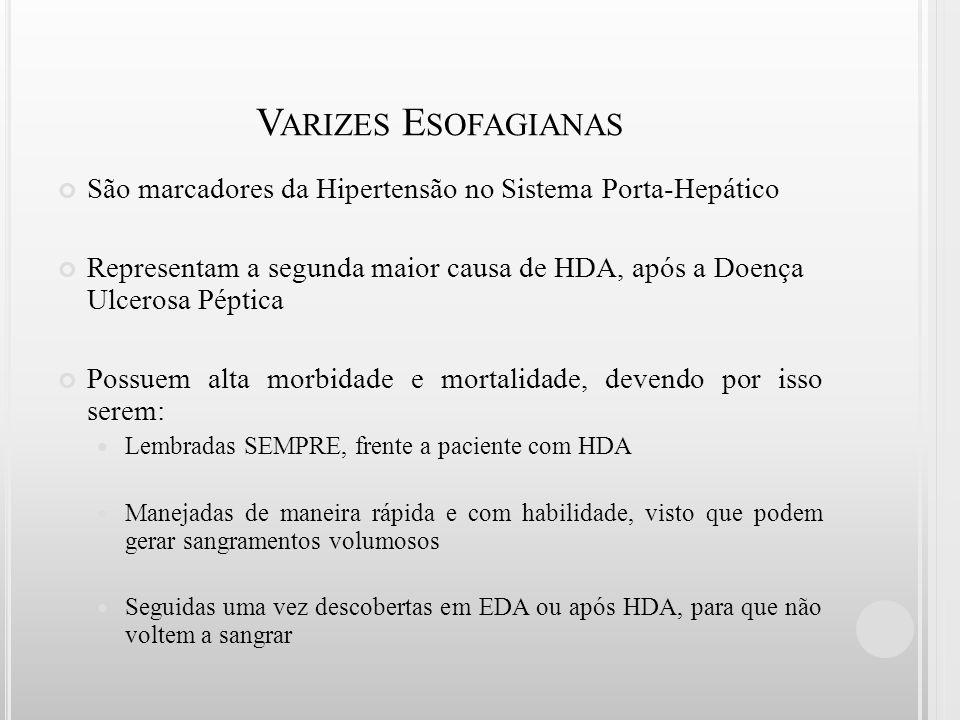 V ARIZES E SOFAGIANAS São marcadores da Hipertensão no Sistema Porta-Hepático Representam a segunda maior causa de HDA, após a Doença Ulcerosa Péptica
